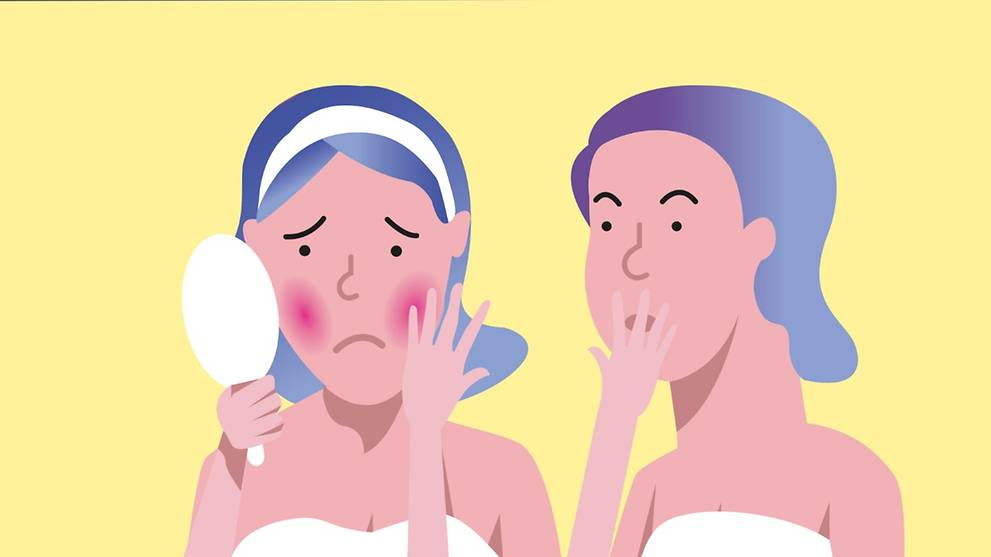 Does your face always look red? Here's what you can do to