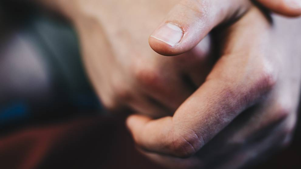 Atopic dermatitis, hand-washing and COVID-19: A rising ...