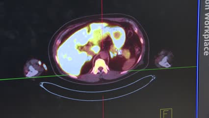 New imaging technique to diagnose hypertension | Video