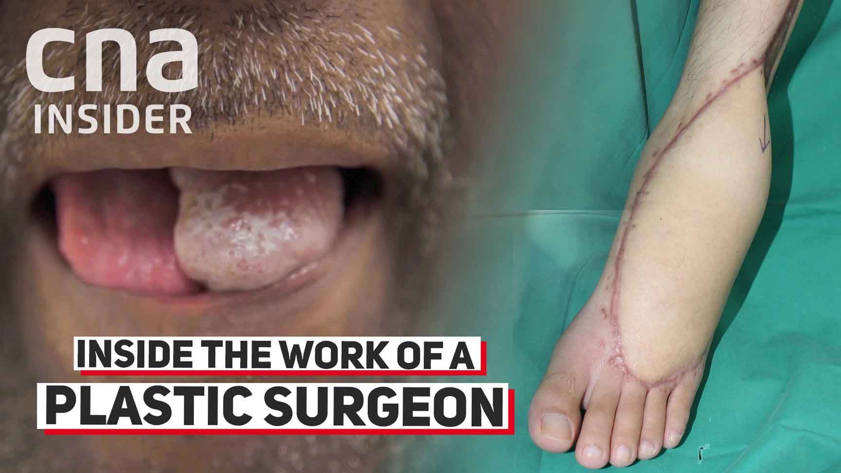Inside The Work Of A Plastic Surgeon At A Public Hospital